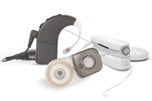 cochlearimplant1